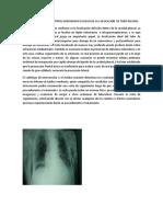 4 Como Se Realiza El Control Radiografico Luego de La Colocacion de Tubo Pleural