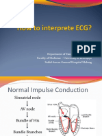 How to Inteprete ECG (Ali Haedar)