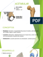 DISPLASIA ACETABULAR