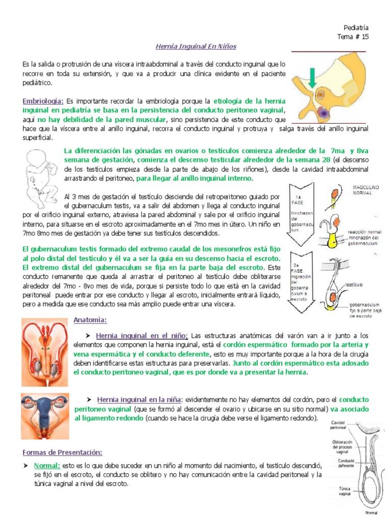 15. Hernia Inguinal en Pediatria