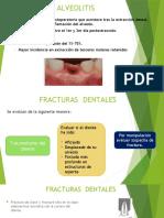 Alveolitis y Fracturas de Maxilar
