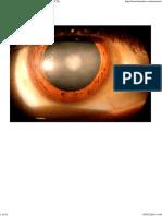 Cataract Aiims Aipgmee Pgi Jipmer Dnb Mcqs