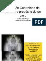 Lux Controlada - A Proposito de Un Caso.ppt