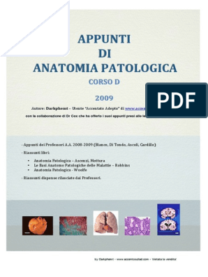 calcificazioni di aspetto lamellare prostata