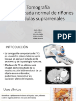 TC Normal de Riñones y Glándulas Suprarrenales