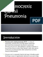 Pneumocytis Carinii Pneumonia