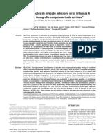 Manifestações Da Infecção Pelo Novo Vírus Influenza a (H1N1) Na Tomografia Computadorizada de Tórax
