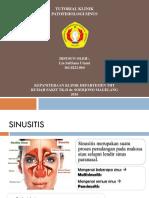 Patofisiologi Sinusitis Lia