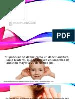 HIPOACUSIAS.pptx
