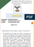 CASO-CLINICO-EPISTAXIS-POSTERIOR.pptx