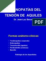 10- Tendinitis Del Aquiles