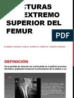 1246517209.Clase de Fx Del Extremo Sup Femur (1)
