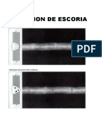 Calificación de radiografias.xls