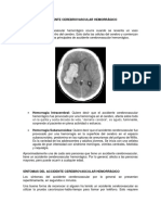 Accidente Cerebrovascular Hemorrágico