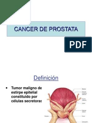 tumor maligno de prostata pdf