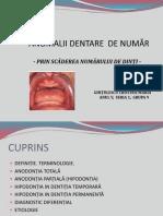 Anomalii Dentare de Număr