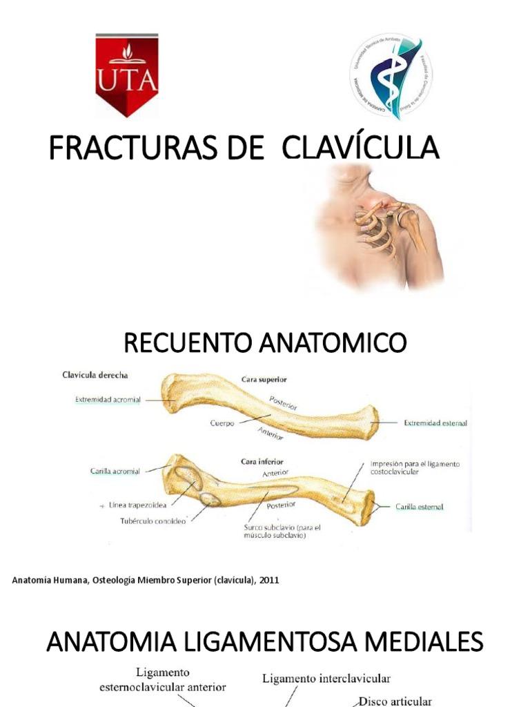 CLASIFICACION DE FRACTURA DE CLAVICULA.pptx e37761507286