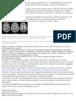 Microangiopatia Cerebral