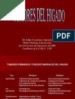 4. j. Tumores Del Higado (1)