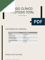 Caso Clínico Prótesis Total