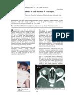 retino bilateral.pdf