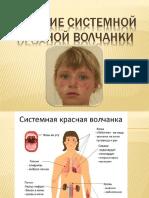 treatment of systemic lupus erythematosus in children