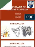 Neuropatía Del Nervio Supraescapular