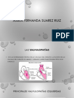 valvulopatias nuevo.pptx