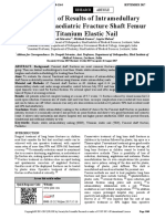 Evaluation of Results of Intramedullary Fixation of Paediatric Fracture Shaft Femur by Titanium Elastic Nail