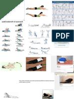 Recuperação Hernia Discal Exercicios