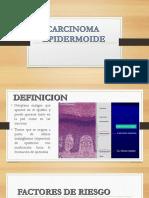 dermatologia :carcinoma epidermoide