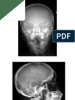 Sectiuni Si Radiografii -An I, Sem 2