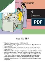 Flip Chart Tuberculosis
