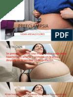 Exposicion de Preeclamsia