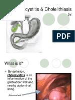 Cholecystitis Cholelithiasis Presentation