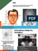 Radiologi SPN dan Mastoid
