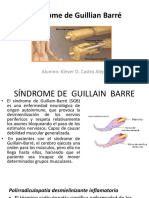 Sindrome de Guillian Barré