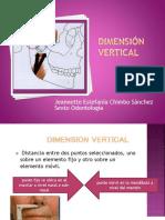 dimensionverticaloclusin-140212043738-phpapp01.ppt