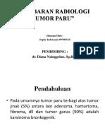 253667978 Gambaran Radiologi Tumor Paru Ppt
