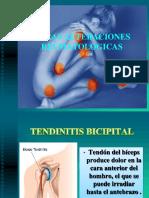 Otras Alteraciones Reumatologicas