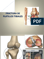 FRACTURAplatillos Tibiales 1 2