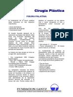 fisura_palatina