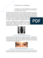 SÍNTOMAS DE LA ALCAPTONURIA.docx