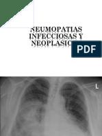 Clase 2 - Neumopatías Infecciosas y Neoplasias