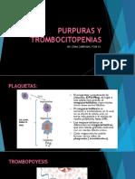 trombocitopenia
