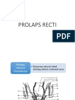 Prolaps Rectal