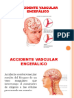 Accidente Vascular Encefálico