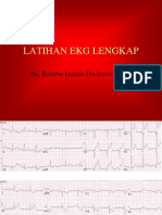 Latihan Ekg 12 Lead Acs