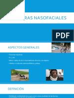 Fx Nasofaciales.pptx