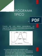1. El Hidrograma Tipico